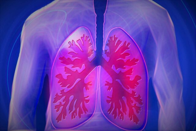 Exercise with COPD