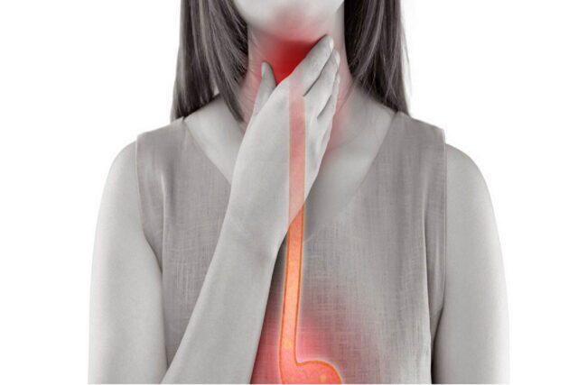 foods to prevent acid reflux